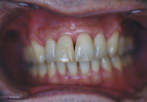 治療後のイメージ