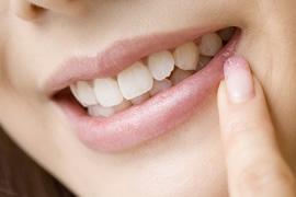 きれいな歯並びは顔立ちも変えますのイメージ
